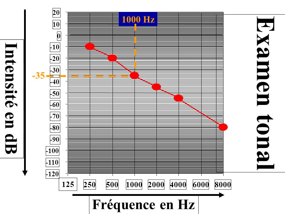 Examen tonal Intensité en dB Fréquence en Hz 1000 Hz -35 250 500 1000