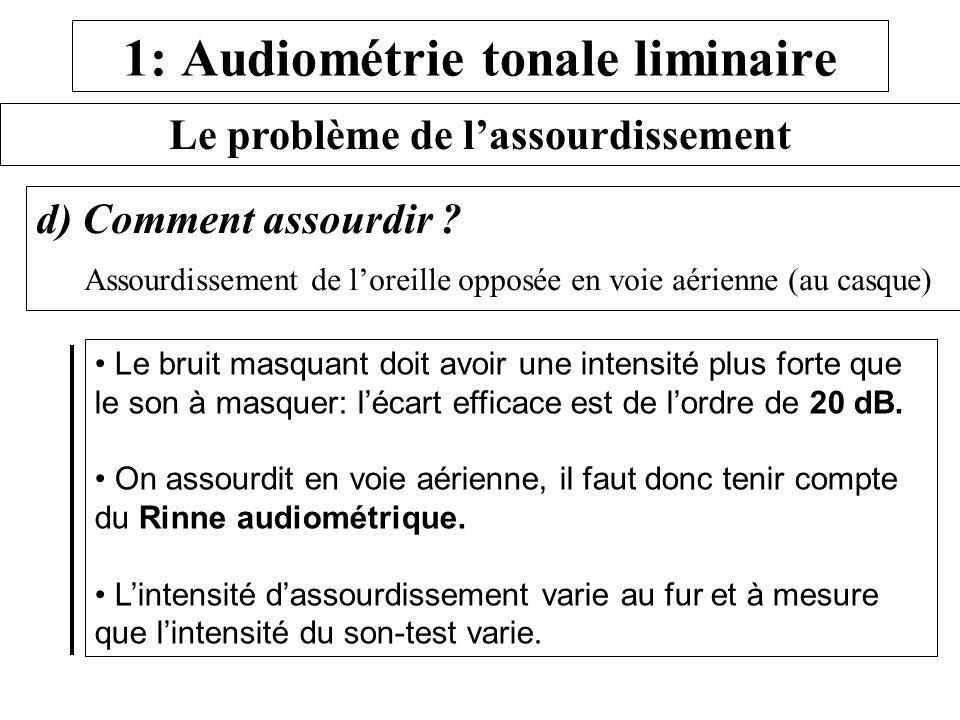 1: Audiométrie tonale liminaire