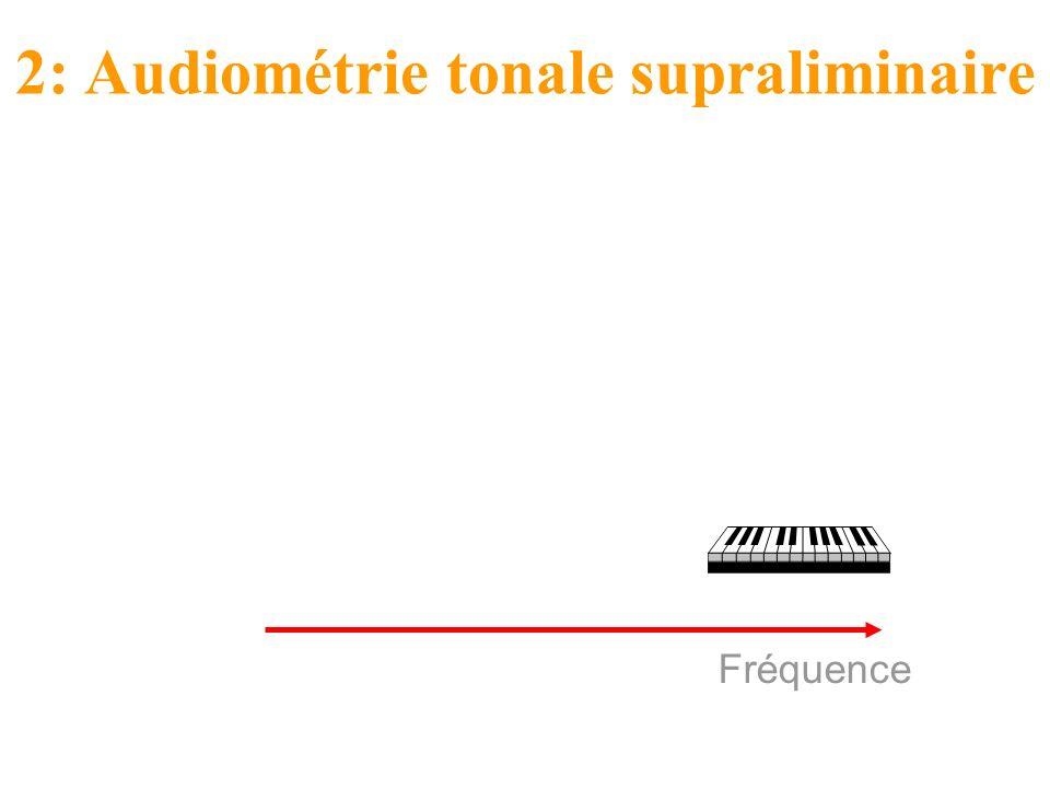 2: Audiométrie tonale supraliminaire