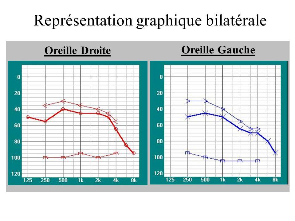 Représentation graphique bilatérale