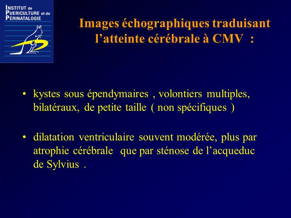 Images échographiques traduisant l'atteinte cérébrale à CMV :