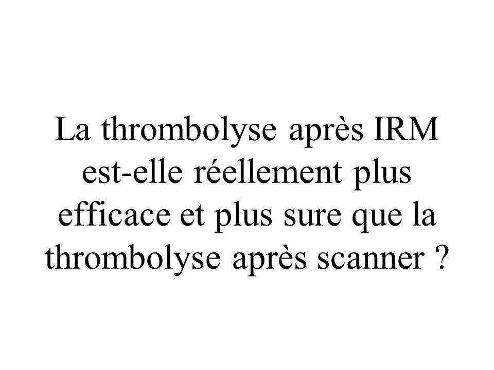 La thrombolyse après IRM est-elle réellement plus efficace et plus sure que la thrombolyse après scanner
