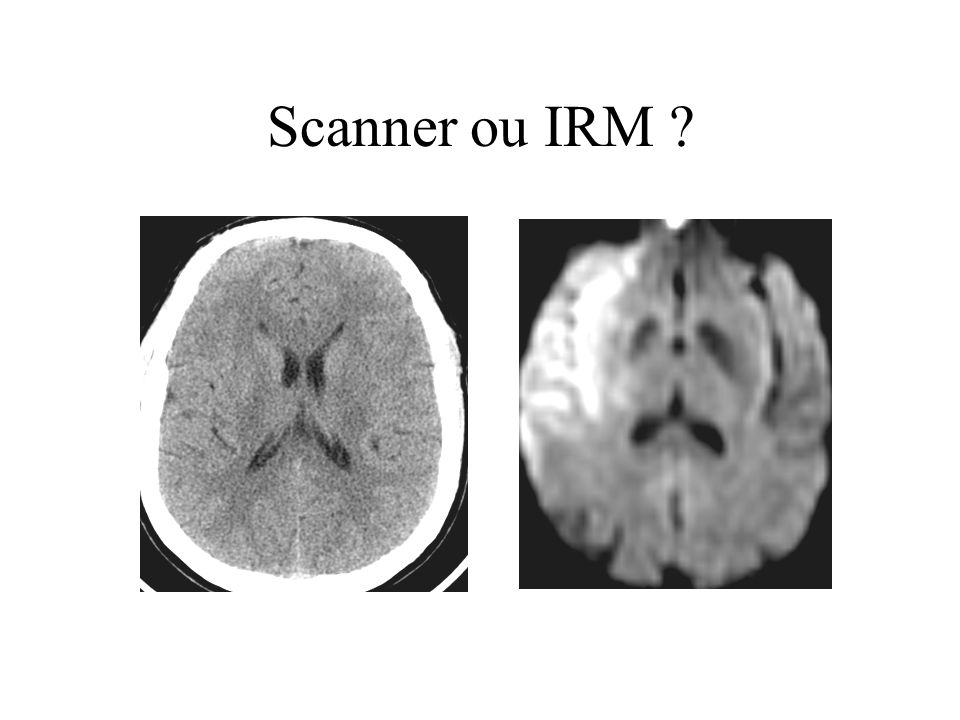 Scanner ou IRM