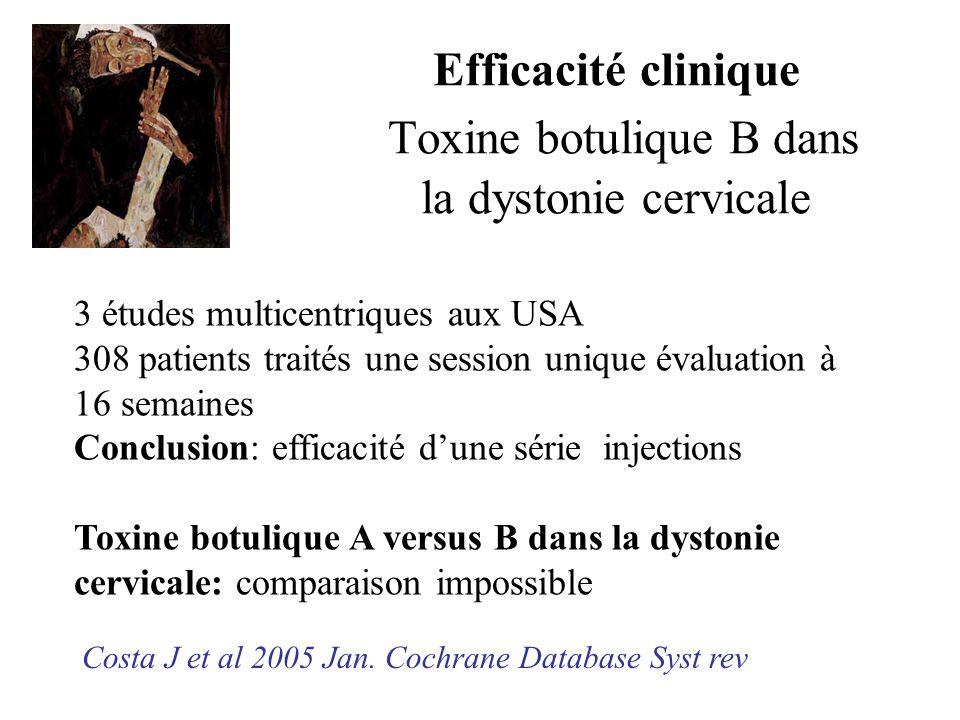 Efficacité clinique Toxine botulique B dans la dystonie cervicale