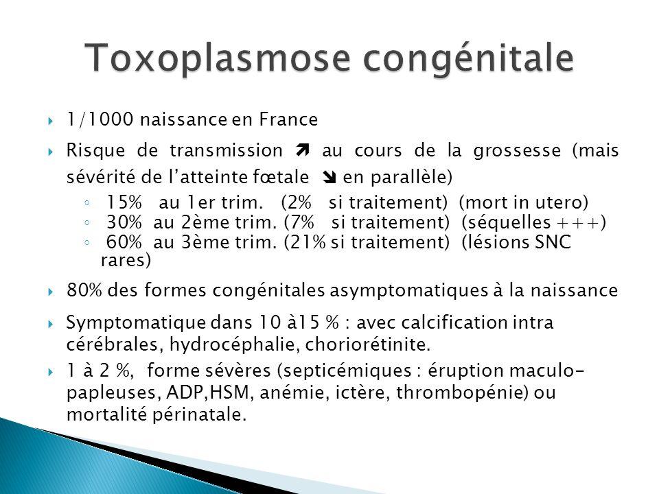 Toxoplasmose congénitale