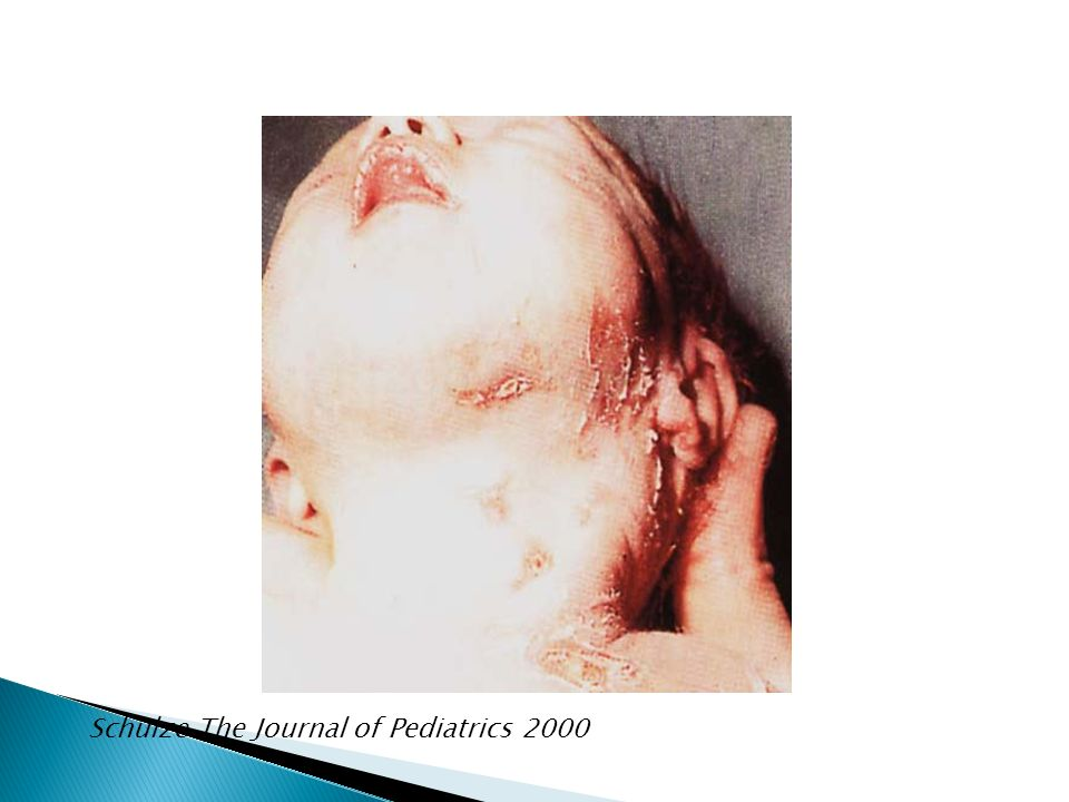Schulze The Journal of Pediatrics 2000