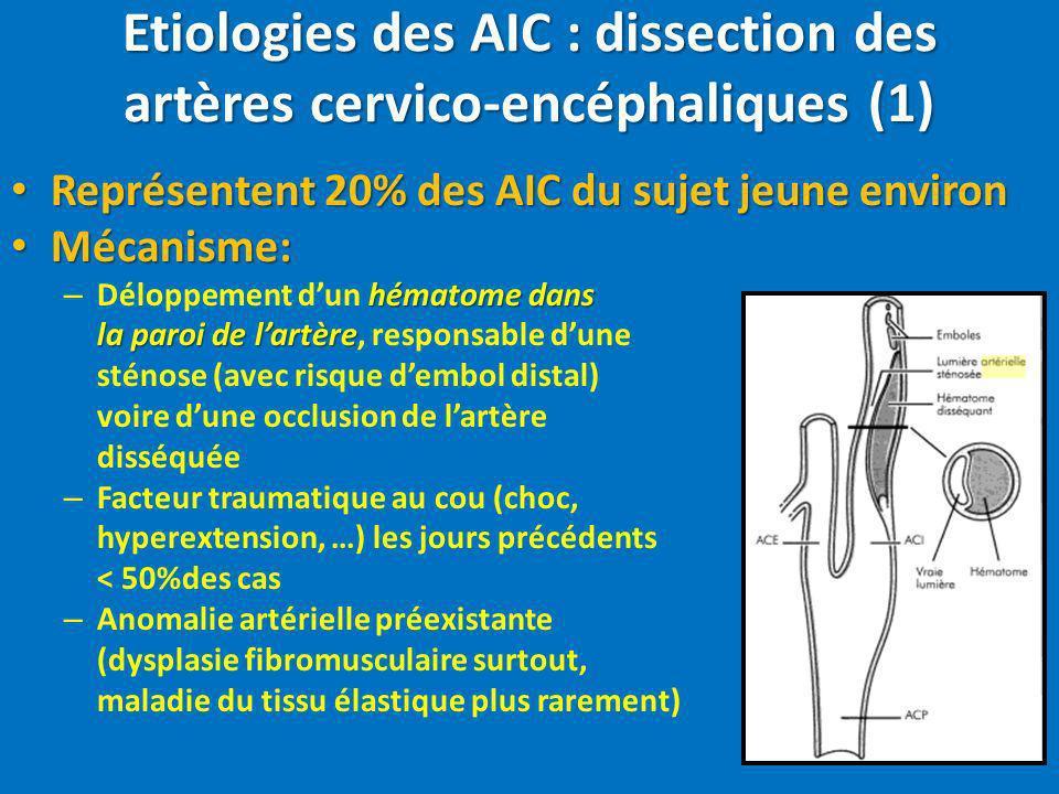 Etiologies des AIC : dissection des artères cervico-encéphaliques (1)