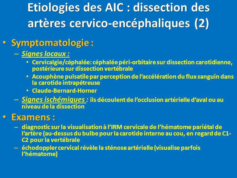 Etiologies des AIC : dissection des artères cervico-encéphaliques (2)