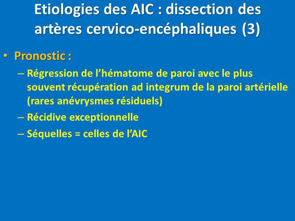 Etiologies des AIC : dissection des artères cervico-encéphaliques (3)