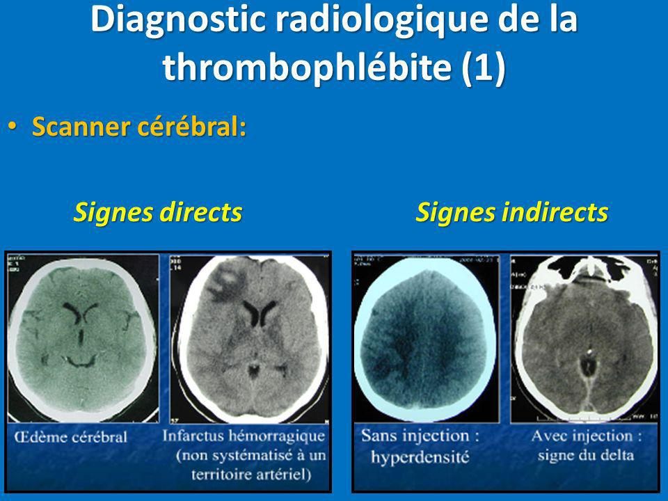 Diagnostic radiologique de la thrombophlébite (1)