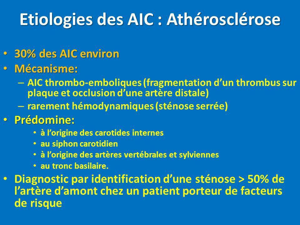 Etiologies des AIC : Athérosclérose