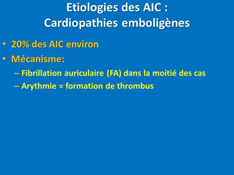 Etiologies des AIC : Cardiopathies emboligènes