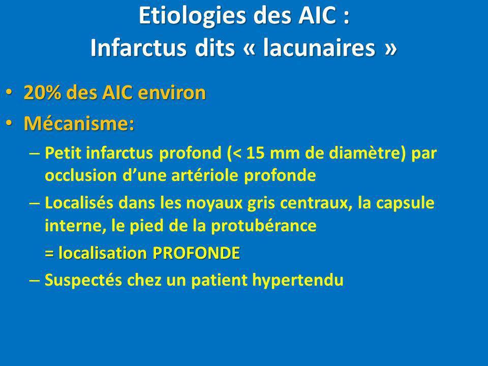 Etiologies des AIC : Infarctus dits « lacunaires »