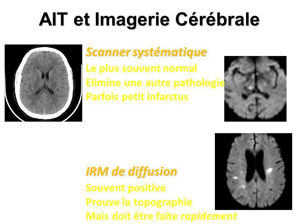 AIT et Imagerie Cérébrale