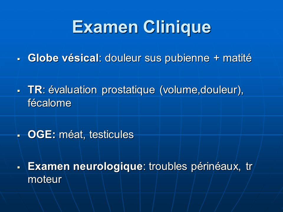 Examen Clinique Globe vésical: douleur sus pubienne + matité