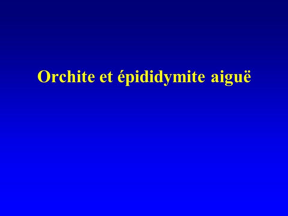 Orchite et épididymite aiguë