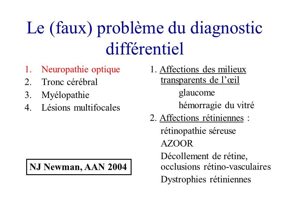 Le (faux) problème du diagnostic différentiel