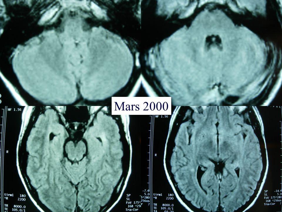 Mars 2000
