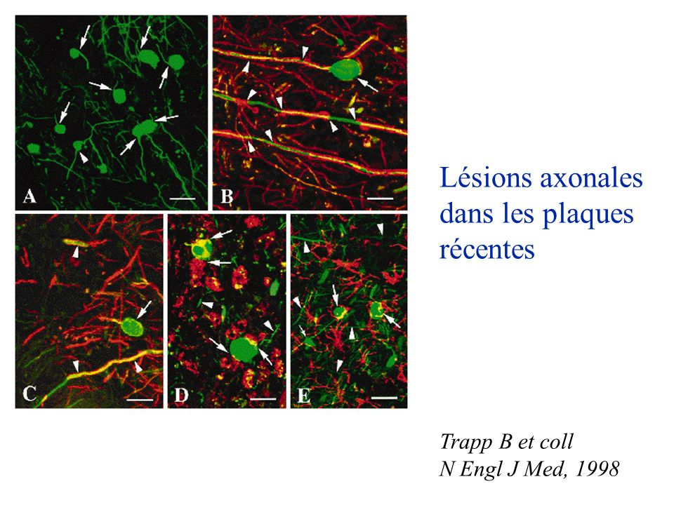 Lésions axonales dans les plaques récentes Trapp B et coll