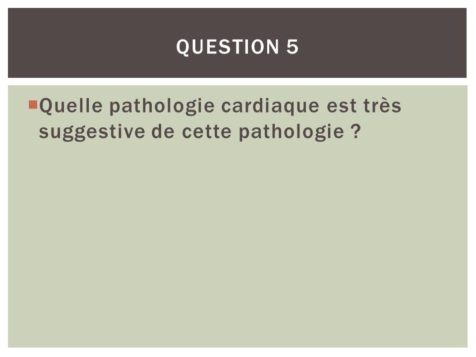 Question 5 Quelle pathologie cardiaque est très suggestive de cette pathologie