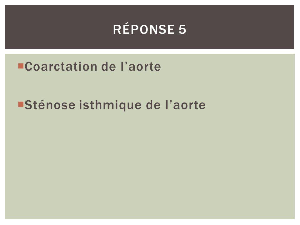 Réponse 5 Coarctation de l'aorte Sténose isthmique de l'aorte