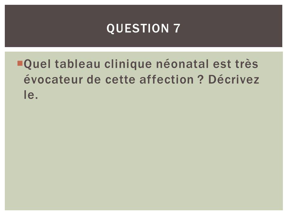 QUESTION 7 Quel tableau clinique néonatal est très évocateur de cette affection Décrivez le.