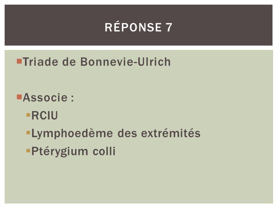 RÉPONSE 7 Triade de Bonnevie-Ulrich Associe : RCIU Lymphoedème des extrémités Ptérygium colli