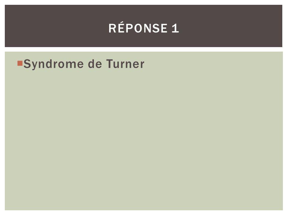 Réponse 1 Syndrome de Turner