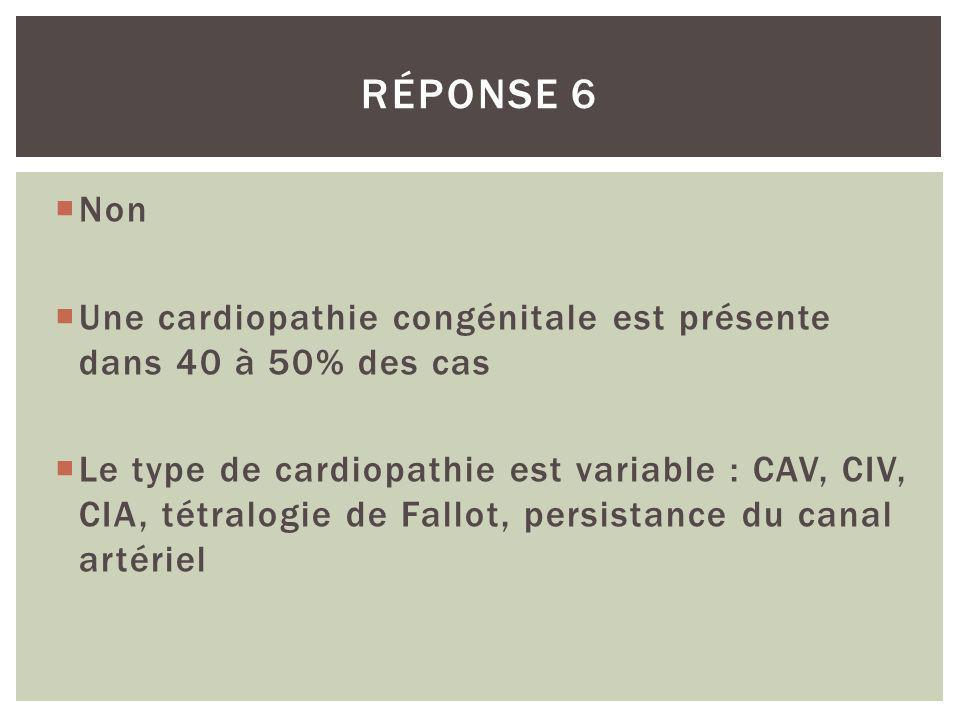 Réponse 6 Non. Une cardiopathie congénitale est présente dans 40 à 50% des cas.