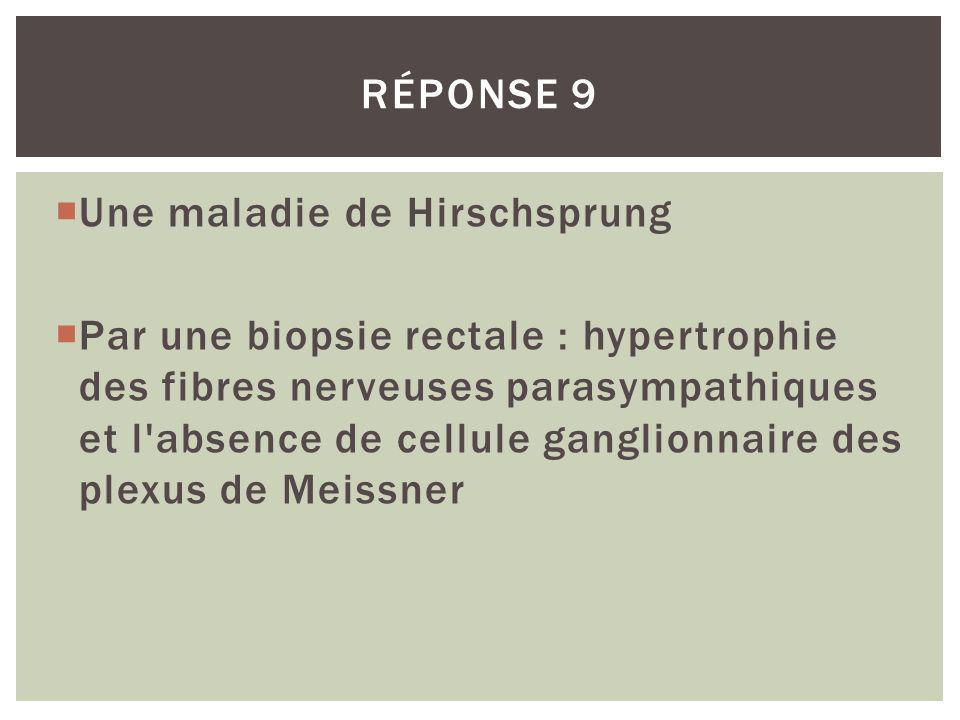 Réponse 9 Une maladie de Hirschsprung.