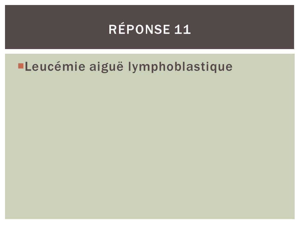 Réponse 11 Leucémie aiguë lymphoblastique