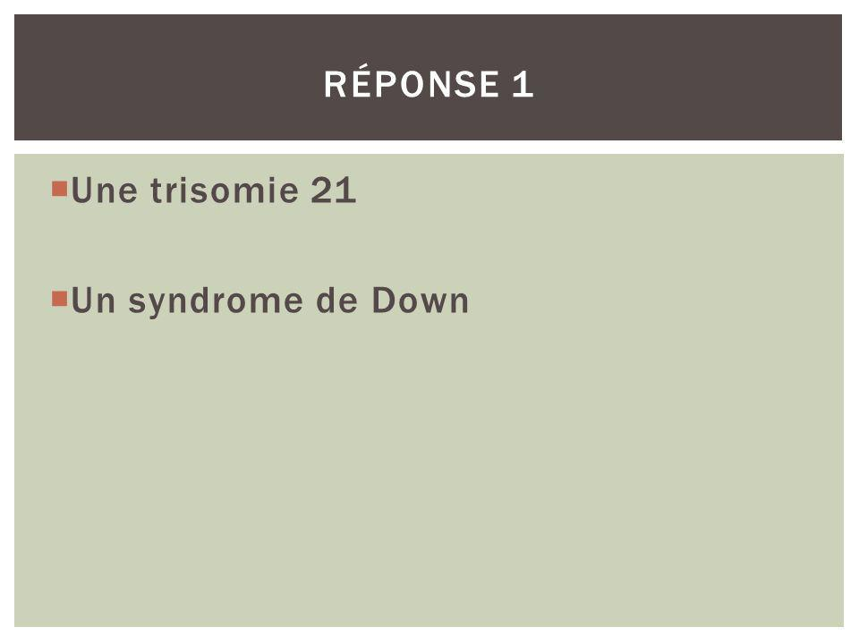 Réponse 1 Une trisomie 21 Un syndrome de Down