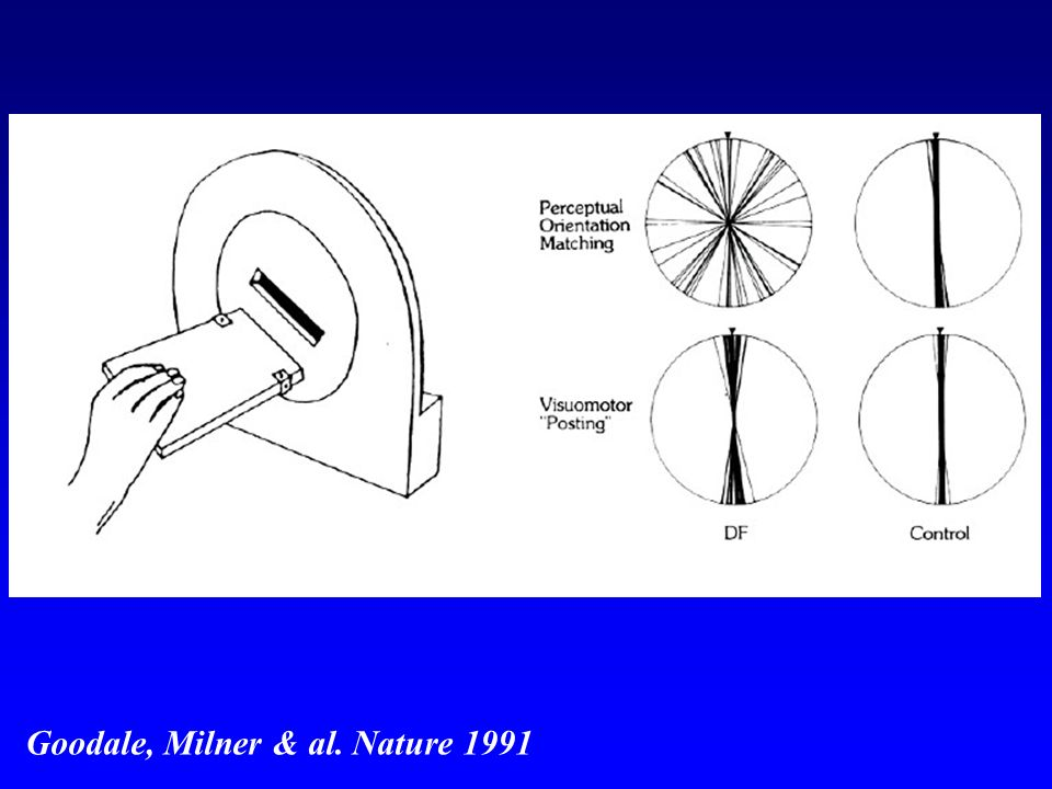 Goodale, Milner & al. Nature 1991