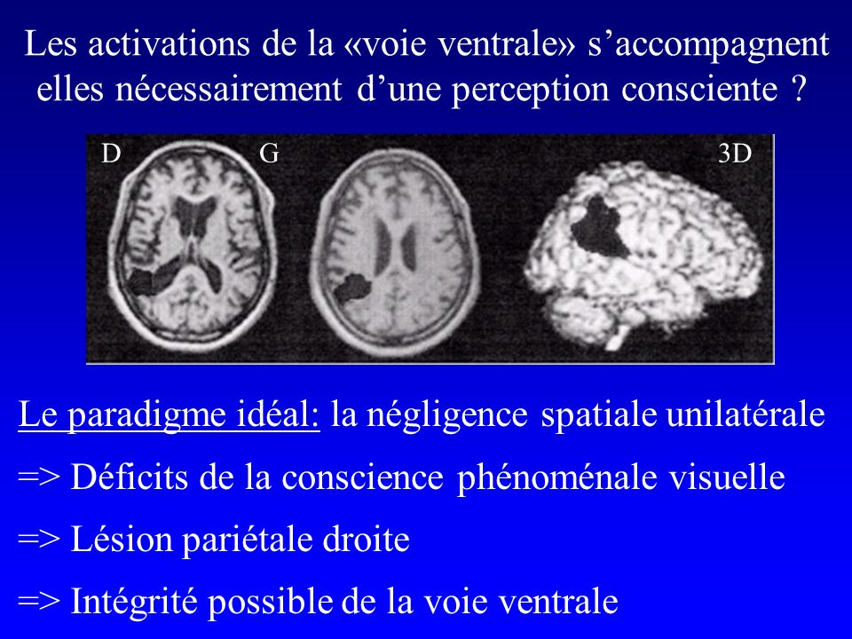 Les activations de la «voie ventrale» s'accompagnent