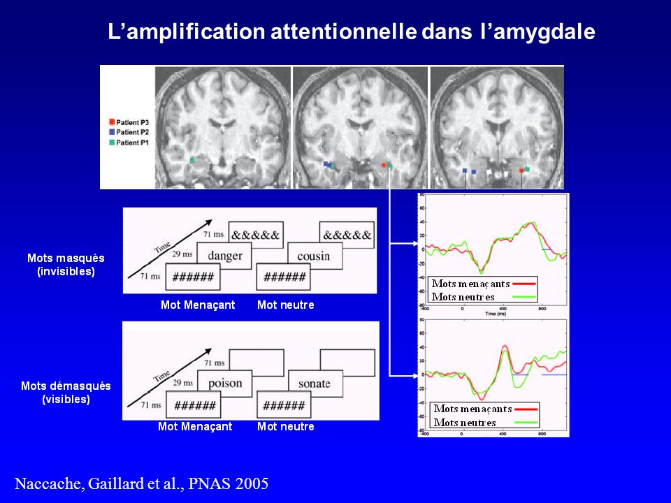 L'amplification attentionnelle dans l'amygdale
