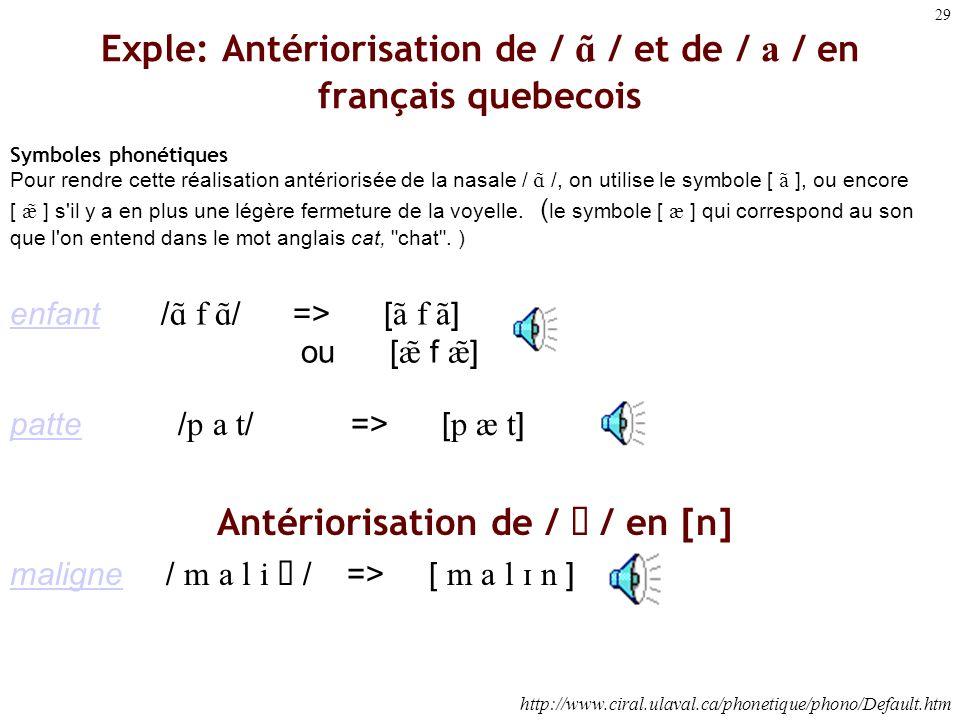 Exple: Antériorisation de / A) / et de / a / en français quebecois