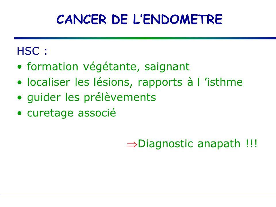 CANCER DE L'ENDOMETRE HSC : formation végétante, saignant
