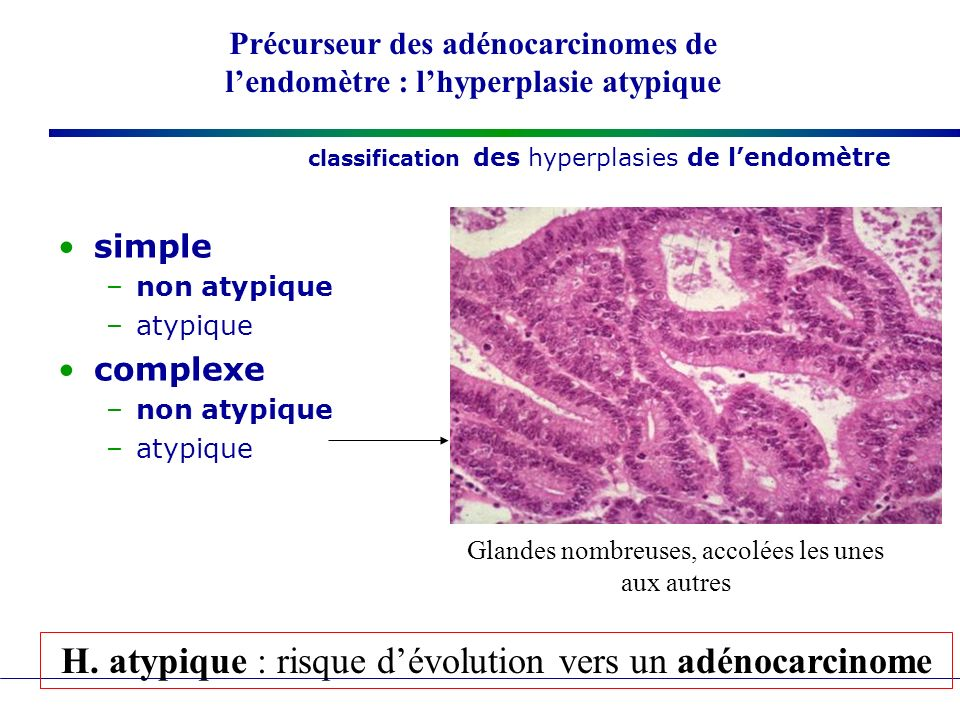 classification des hyperplasies de l'endomètre