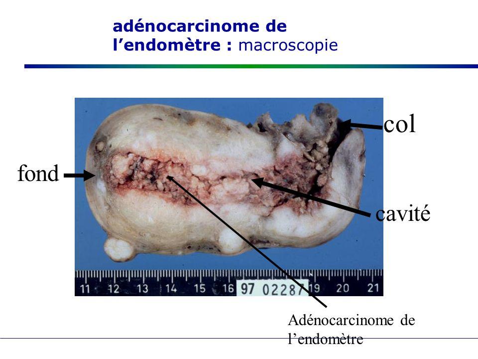 adénocarcinome de l'endomètre : macroscopie