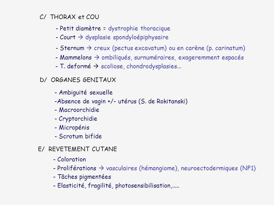 C/ THORAX et COU Petit diamètre = dystrophie thoracique. - Court  dysplasie spondyloépiphysaire.