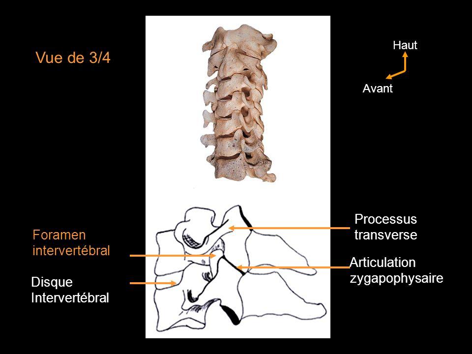 Vue de 3/4 Processus transverse Foramen intervertébral Articulation