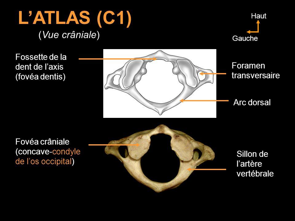 L'ATLAS (C1) (Vue crâniale) Fossette de la dent de l'axis Foramen