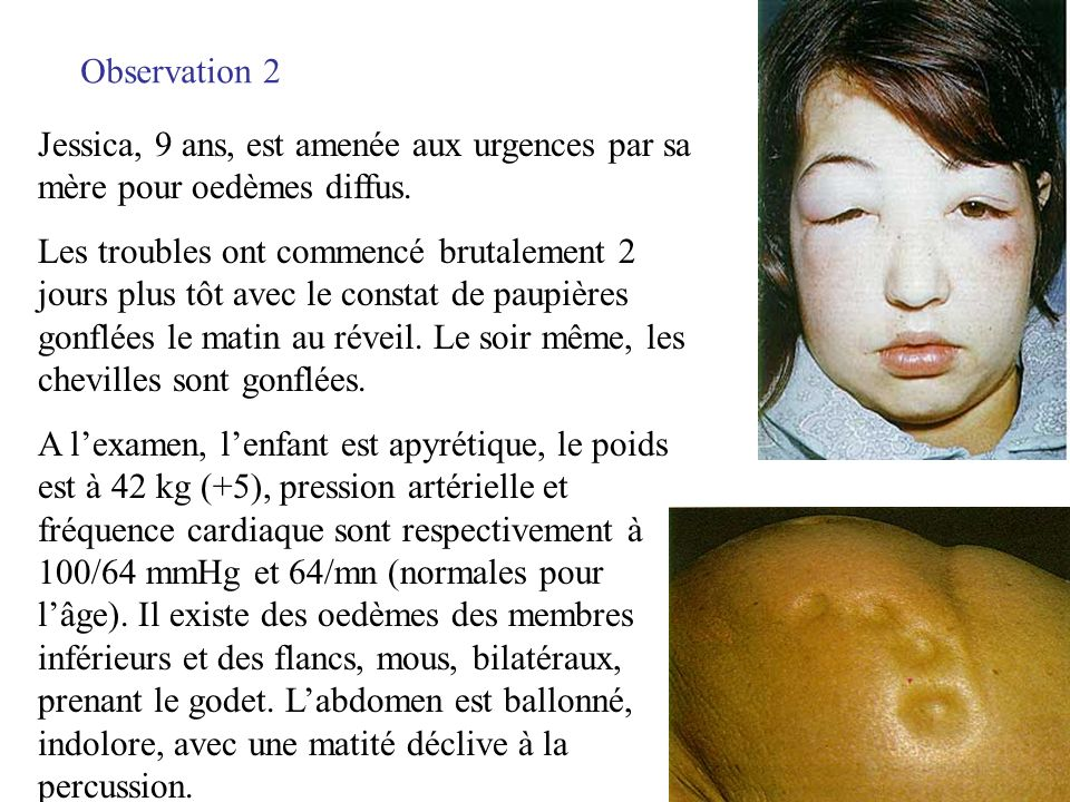 Observation 2 Jessica, 9 ans, est amenée aux urgences par sa mère pour oedèmes diffus.