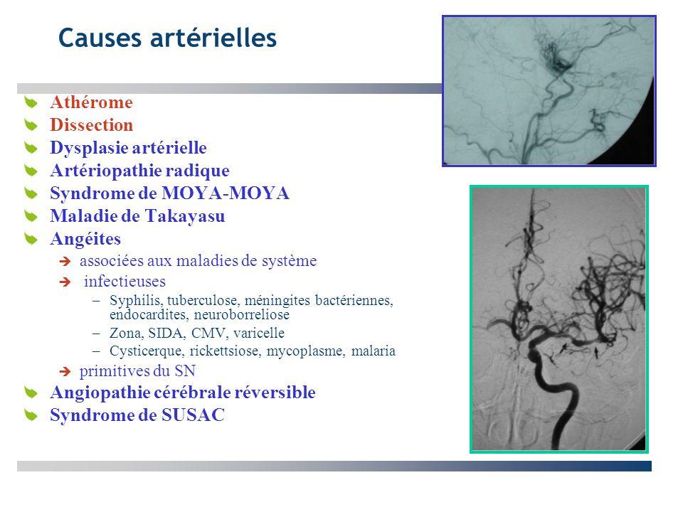 Causes artérielles Athérome Dissection Dysplasie artérielle