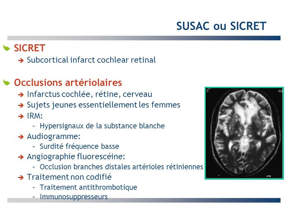 SUSAC ou SICRET SICRET Occlusions artériolaires