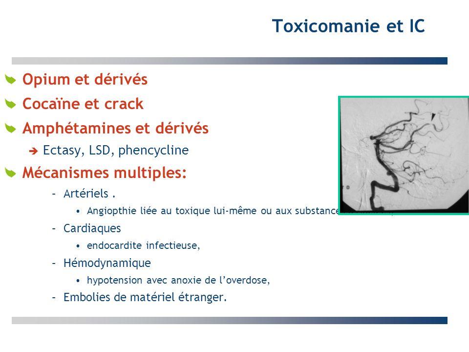 Toxicomanie et IC Opium et dérivés Cocaïne et crack
