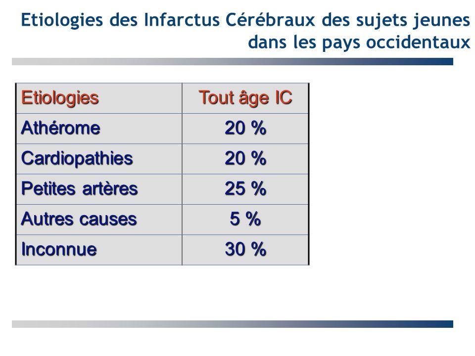 Etiologies des Infarctus Cérébraux des sujets jeunes dans les pays occidentaux
