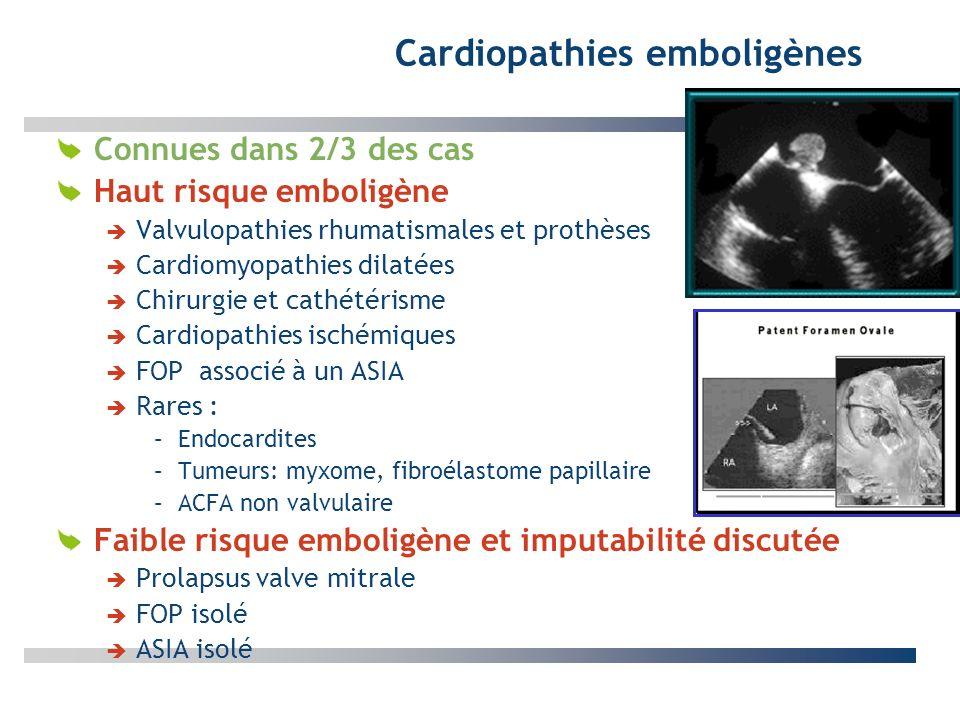Cardiopathies emboligènes