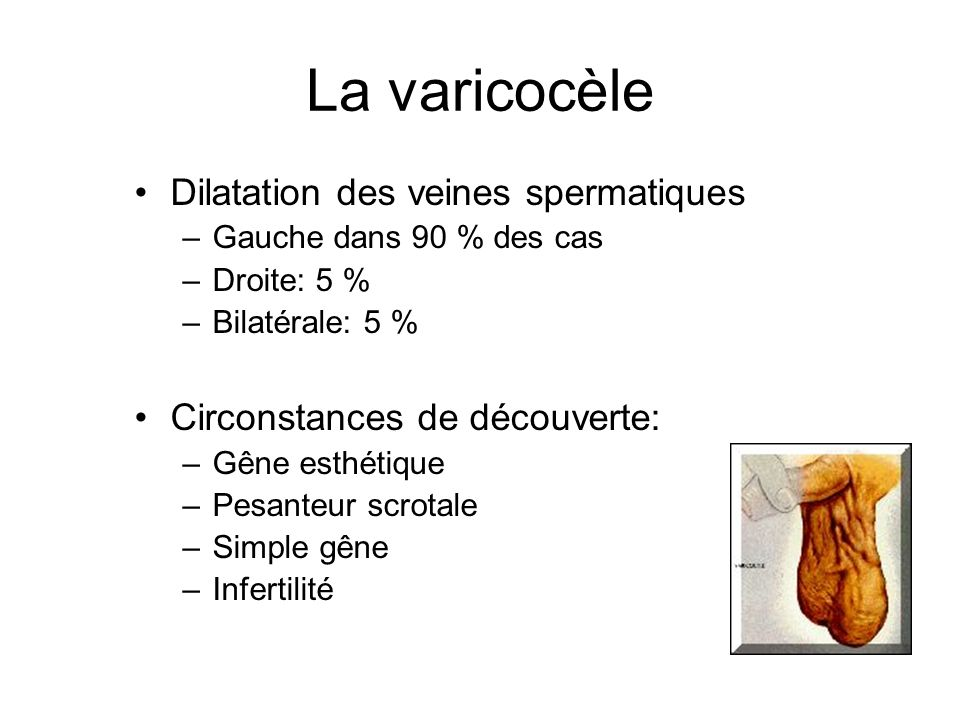 La varicocèle Dilatation des veines spermatiques