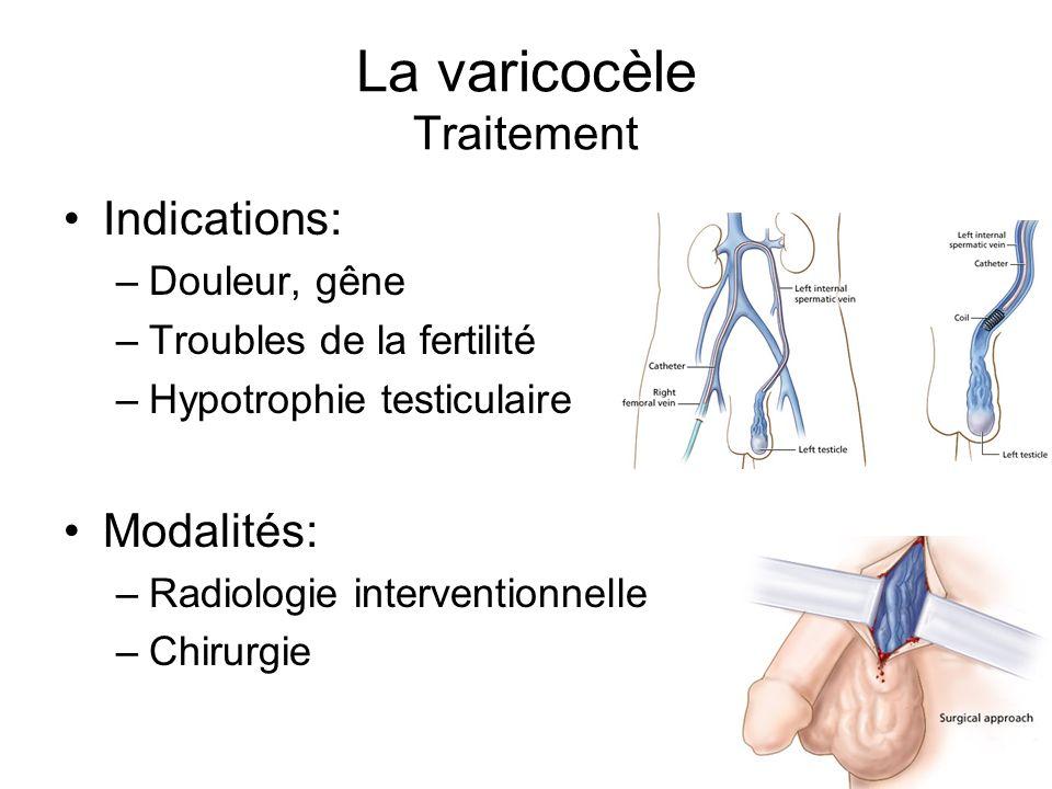 La varicocèle Traitement